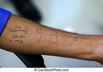 反応, 患者, 医者, 腫れ, 提示, アレルギー, 手, 準備, hypersensitivity, 皮膚, テスト, wheal, アレルギー