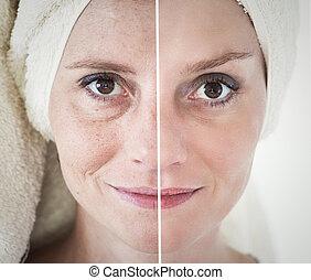 反老化, 概念, プロシージャ, 美しさ, -, 持ち上がること, 美顔術, スキンケア, きつく締まること, 若返り