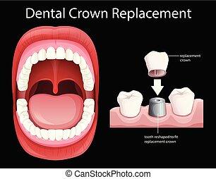 口, 歯医者の, 王冠, 人間, 取り換え