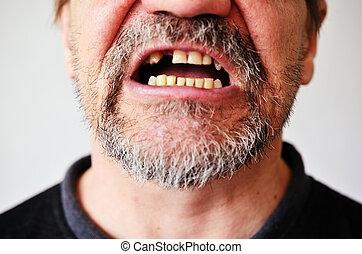 口, 顔, 歯のない, 開いた, 人