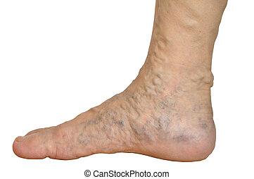 古い, アジア, 女, 足首, 白, 背景, varicose, 静脈