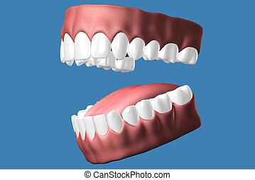 向上。, 關閉, 3d, 牙齒