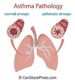 哮喘, 病理學