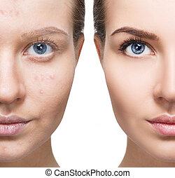 問題, 女, skin.