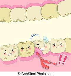 問題, 歯, 漫画, 腐食