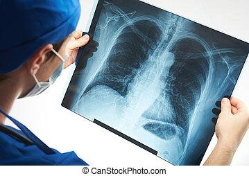 圖像, x光, 人的胸膛