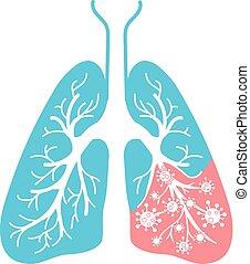 圖象, ......的, 肺疾病, 細菌