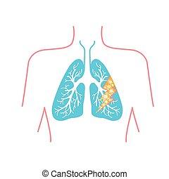 圖象, ......的, 肺疾病