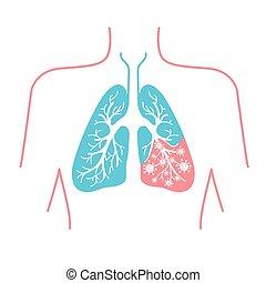 圖象, ......的, 肺疾病, pneumonia