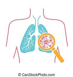 圖象, ......的, 肺, pneumonia