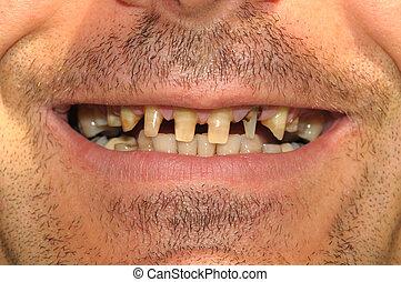 坏, 牙齒