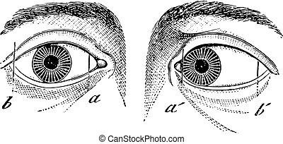 型, 左, esotropia, 目, engraving.