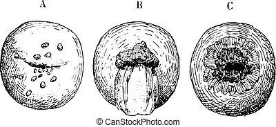 型, ulceration, 子宮頸, engraving.