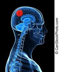 大脳である, 腫瘍