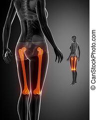 大腿骨, x--ray, 黒, 骨走査