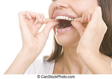 女の子の微笑, 保持器, 歯, 美しい