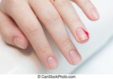傷, 指, 切り口ストックフォト -...