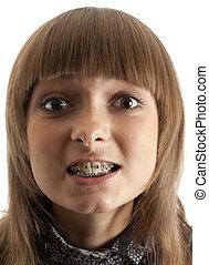 女孩, 微笑, 由于, 托架, 上, 牙齒