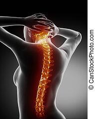 女性, 脊骨, 解剖學, -, 子宮頸脊椎, 痛苦