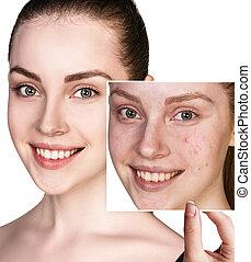 女, 写真, treatment., ひどく, 皮膚, ショー, 前に