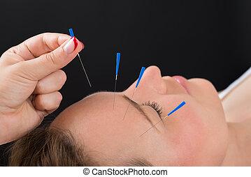 女, 針, 顔, 人, パッティング, 刺鍼術