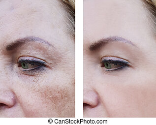 妇女` s, 改正, 在之后, 皱纹, 脸, 过程, 以前