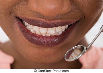 婦女, 檢查, 她, 牙齒
