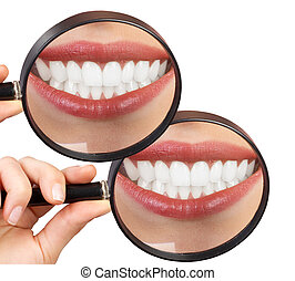 婦女, 牙齒