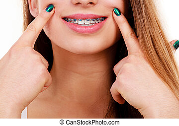 婦女, 顯示, 她, 牙齒, 由于, 括號