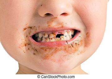 子供, 歯, 口, 汚い, 欠けている