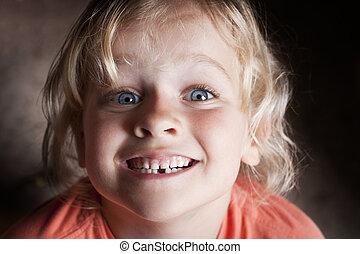 子供, 歯, 欠けている