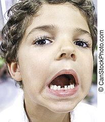 子供, 歯, -, 欠けている