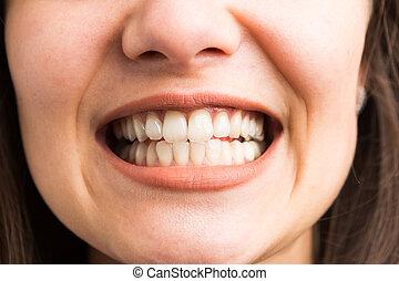 年輕婦女, 顯示, 她, 牙齒
