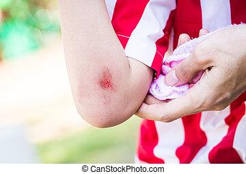 幼児, ∥で∥, 出血, 腕, 傷, 近くに, 肘