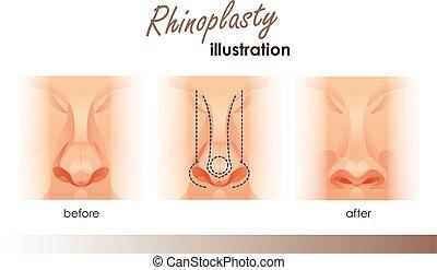 広告, 手術, プラスチック, 人間, 前部, nose., 医学, 光景, 美しさ, rhinoplasty., デザイン