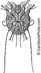 彫版, かゆみ, 型, scabiei, sarcoptes, ダニ, ∥あるいは∥
