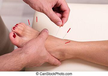 待遇, 女, 経ること, クローズアップ, 刺鍼術