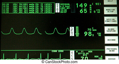 心電圖記錄儀監視器