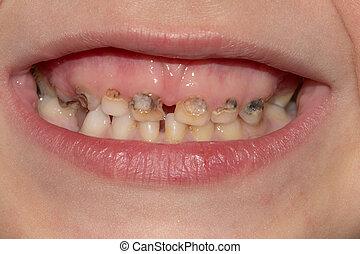 患者, 腐食, 歯医者の, ヘルスケア, -, 口, カリエス, 人間の猛威, 薬, 開いた, 提示