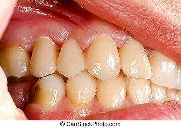 押された, セラミック, 歯, 中に, 口頭の虫歯