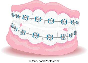 支柱, 総入れ歯
