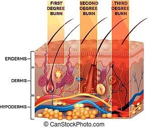 最初に, 程度, 第3, 焼跡, 二番目に, 皮膚, classification., 焼跡