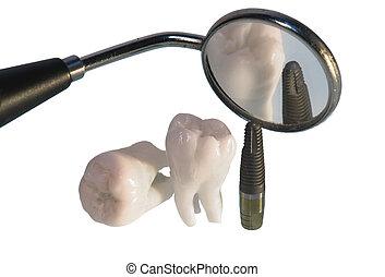 植入, 牙齒