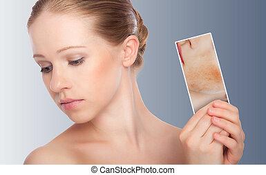 概念, skincare, ., 皮膚, の, 美しさ, 若い女性, ∥で∥, 赤み, 皮膚, 問題, ニキビ, 発疹, 焼跡, 上に, a, グレーのバックグラウンド