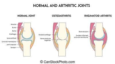 正常, 以及, 關節炎, 人類, joints.
