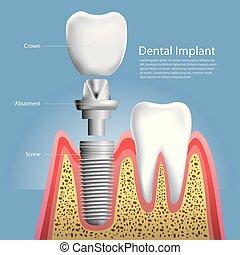 歯医者の, イラスト, ベクトル, 人間の猛威, 移植