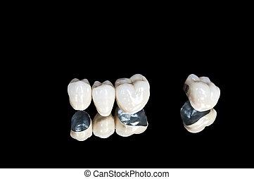 歯医者の, セラミック, 王冠