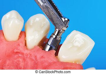 歯医者の, ピンセット, 移植, 保有物