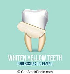 歯医者の, ベクトル, 技術者, 歯, 白くなる, ベニヤ, 概念