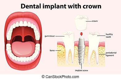 歯医者の, ベクトル, 王冠, 移植